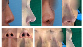notching nose + correcting flat nose + balancing nostrils' asymmetry(closed rhinoplasty)
