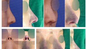 contracted nose + long nose + hanging nose + designing length(closed rhinoplasty)