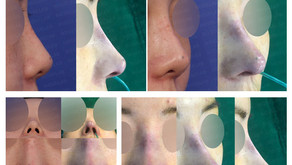 upturned nose + glabella line + columella lengthening + nostrils' asymmetry(closed rhinoplasty)