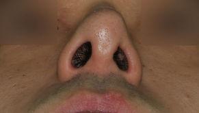 deviated nose + upturned nose + balancing nostrils' asymmetry +  hanging columella