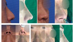 bulbous nose + upturned nose +  glabella line(closed rhinoplasty)