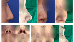 notching nose + correcting long nose + balancing nostrils' asymmetry (closed rhinoplasty)