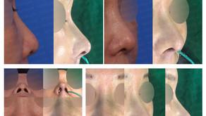 bulbous nose + hanging nose + designing length + self rib cartilage(closed rhinoplasty)