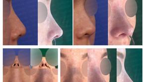 deviated nose + upturned nose + balancing nostrils' asymmetry + autologous costal cartilage