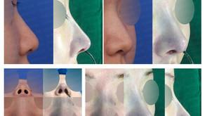 long nose + designing glabella line + nose tip + nose tip