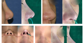 bulbous nose tip + hanging columella + balancing nostrils' asymmetry(closed rhinoplasty)