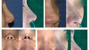 bulbous nose tip + hanging columella + balancing nostrils' asymmetry(closed rhinoplasty)