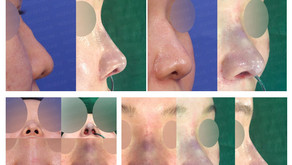 long nose + deviated nose + hump nose + notching nose + nostrils' asymmetry(closed rginoplasty)
