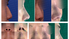 correcting bulbous nose + columella lengthening + reshaping depressed nose(closed rhinoplasty)