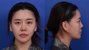 closed rhinoplasty + hanging nose tip + correcting upturned nose(closed rhinoplasty)