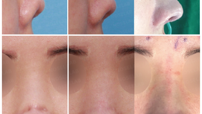 contracted nose revision + necrosis skin + upturned nose + columella lengthening + stem cell cure