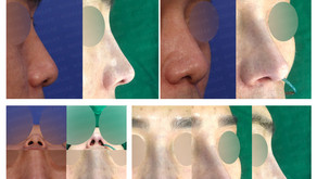 hanging nose tip + hanging columella(closed rhinoplasty)