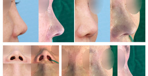 correcting upturned nose + designing length + balancing nostrils' asymmetry(closed rhinoplasty)