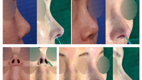upturned nose + columella lengthening + balancing nostrils' asymmetry(closed rhinoplasty)