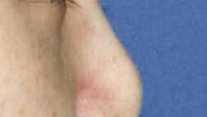deviated nose + hanging nose tip + bulbous nose tip + balancing nostrils' asymmetry(revision)