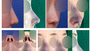 long nose + designing length + bulbous nose(closed rhinoplasty)