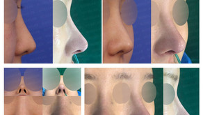 long nose + designing length + nose tip + balancing nostrils' asymmetry(closed rhinoplasty)