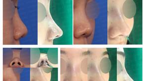 bulbous nose + columella lengthening + designing length(closed rhinoplasty)