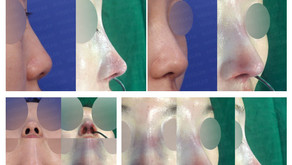 bulbous nose + deviated nose + designing volume(closed rhinoplasty)