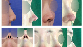 upturned nose + columella lengthening + designing glabella line(closed rhinoplasty)