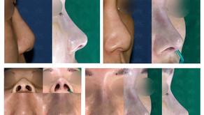 reshaping depressed nose + reshaping bulbous nose tip + balancing nostrils' asymmetry