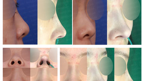 upturned nose + bulbous nose tip + hanging columella(closed rhinoplasty)