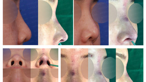 short nose + upturned nose + columella lengthening + autologous costal cartilage(closed rhinoplasty)