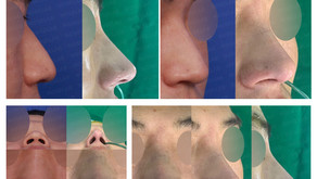 hanging nose + long nose + columella lengthening + autologous costal cartilage(closed rhinoplasty)