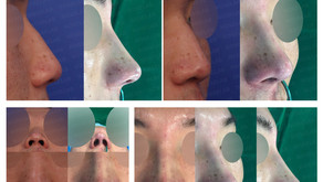 bulbous nose + hump nose + columella lengthening(closed rhinoplasty)
