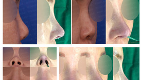short nose + upturned nose + balancing nostrils' asymmetry + self rib cartilage(closed rhinoplasty)