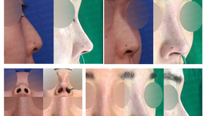 removing threads + hump nose + hanging nose tip + short nose(closed rhinoplasty)