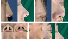 correcting hanging nose tip + designing glabella line