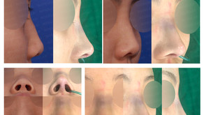 hump nose + bulbous nose + columella lengthening(closed rhinoplasty)