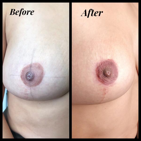 Ablong nipple