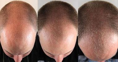 avap_advanced_hair_complex2.jpg