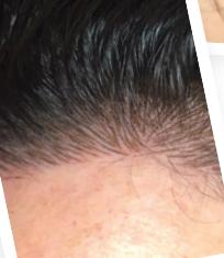 Correction Alopecie Micro-Pigmentation