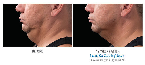 Male chin coolscultping treatment and picture results