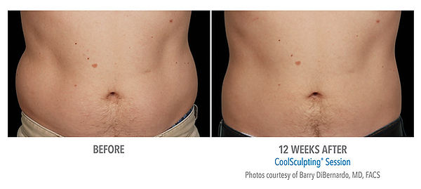 male abdomen coolsculpting treatment and picture results