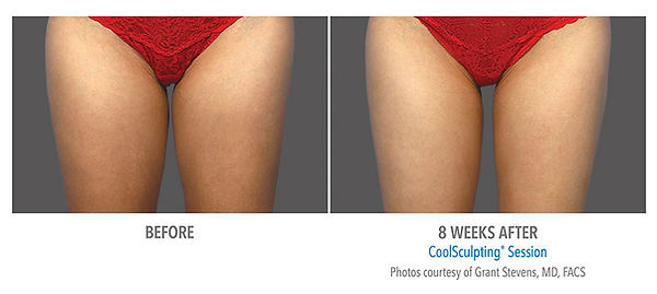 Female inner thigh coolsculpting treatment and picture results