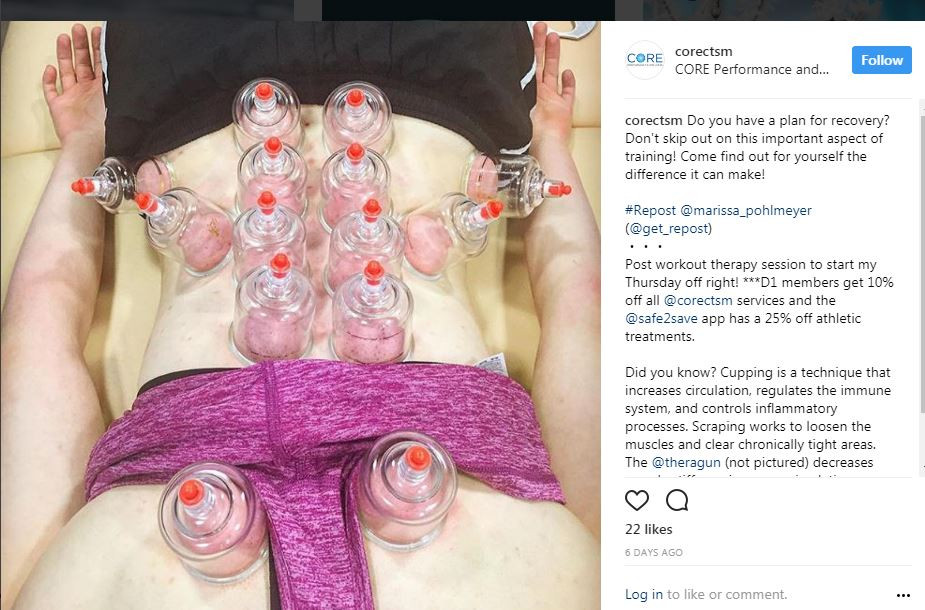 Cupping at CORE