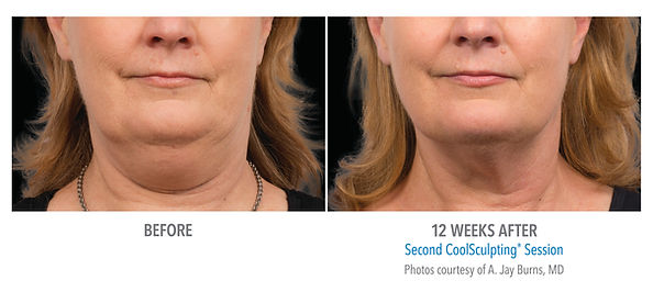 Female chin coolsculpting treatment and picture results
