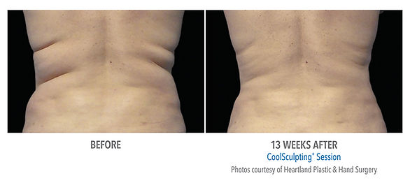 Female flank coolsculpting treatment and picture results