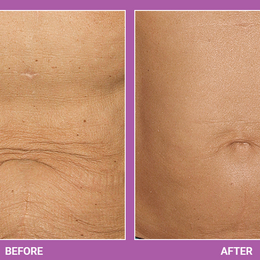 Thermage   Skin Tightening Treatment (2)