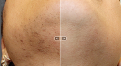 hair-removal2-420x231