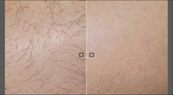 hair-removal1-420x233