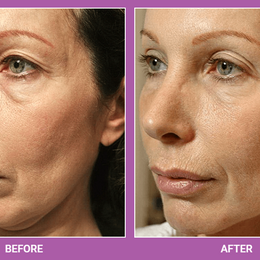 Thermage   Skin Tightening Treatment.png