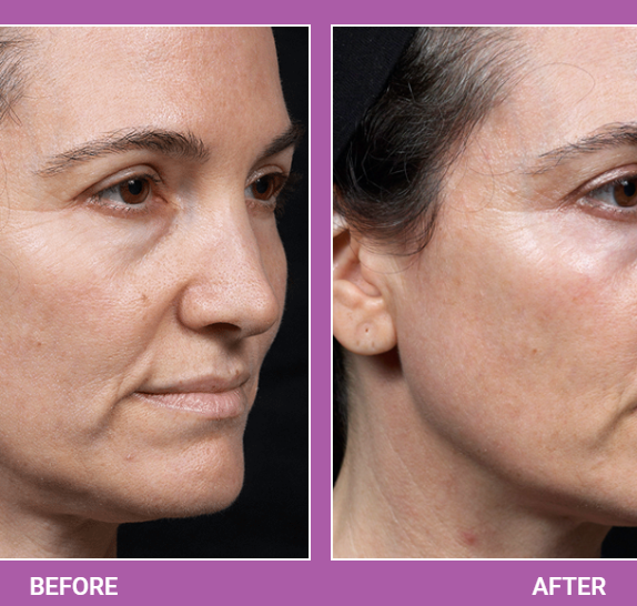 Thermage   Skin Tightening Treatment (1)