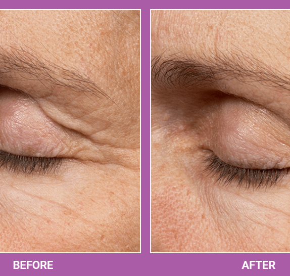 Thermage   Skin Tightening Treatment (5)