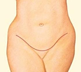 Abdominoplasty_4.png