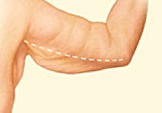 Brachioplasty 1.png